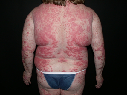 Psoriasis Treatment: How Biologics Work